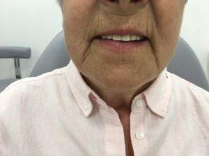 Resultado de los implantes superiores en la cara de satisfacción de Carmen